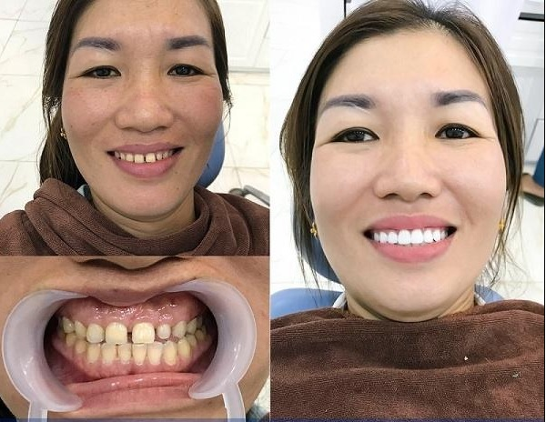 bọc răng sứ là gì, bọc răng sứ có tốt không, bọc răng sứ có bền không, bọc răng sứ như thế nào, bọc răng sứ có ảnh hưởng gì không, bọc răng sứ thẩm mỹ có tốt không, bọc răng sứ thẩm mỹ có ảnh hưởng gì không