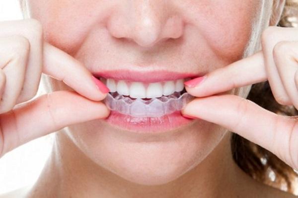 niềng răng không mắc cài, niềng răng không mắc cài có đau không, niềng răng vô hình,niềng răng không mắc cài ở đâu, niềng răng không mắc cài có hiệu quả không, niềng răng không mắc cài clear aligner, niềng răng không mắc cài mất bao lâu, phương pháp niềng răng không mắc cài, review niềng răng không mắc cài