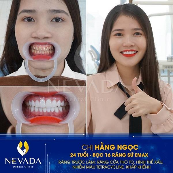 Bọc răng sứ bị ngứa lợi