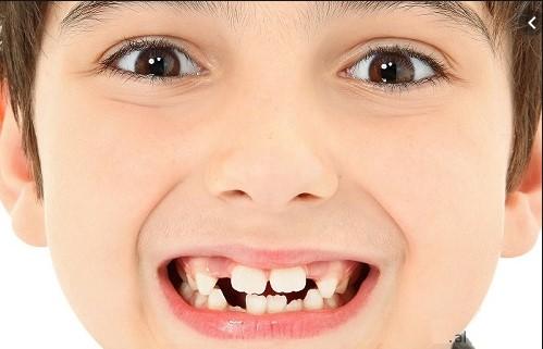 mơ mọc răng, mơ mọc răng đánh con gì, mơ mọc răng khôn, mơ thấy con gái mình mọc răng, mơ thấy con mọc răng là điềm gì, mơ thấy răng lung lay, nằm mơ thấy răng của người khác, mơ thấy răng người khác