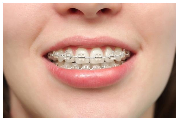 đeo niềng răng tiếng anh là gì, niềng răng tiếng anh là gì, niềng răng tiếng anh, niềng răng trong tiếng anh, niềng răng trong tiếng anh là gì, tháo niềng răng tiếng anh là gì, đeo niềng răng tiếng anh là gì, cái niềng răng tiếng anh là gì, niềng răng bằng tiếng anh, niềng răng dịch tiếng anh, đeo niềng răng tiếng anh