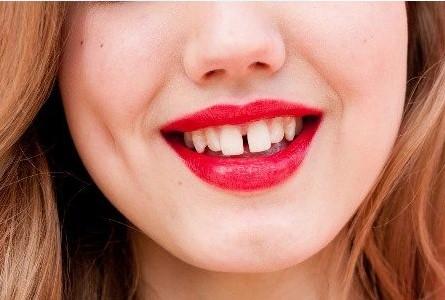 răng thưa, cải thiện răng thưa, niềng răng thưa mất bao lâu, răng cửa thưa trong tướng số, răng cửa thưa tướng số, răng thưa nói láo, răng thưa sướng hay khổ, răng thưa thừa của, xem tướng đàn ông răng thưa, trám răng thưa, niềng răng thưa, răng thưa phải làm sao, cách làm răng thưa khít lại tại nhà ,cách làm răng hết thưa tại nhà, răng thưa có xấu không, răng thưa có ý nghĩa gì, răng nhỏ và thưa, răng thưa nói lên điều gì, niềng răng có ảnh hưởng đến tướng số,điều trị răng thưa, răng cửa to nói lên điều gì, răng thưa tướng số,cách trị răng thưa tại nhà, răng cửa có khe hở