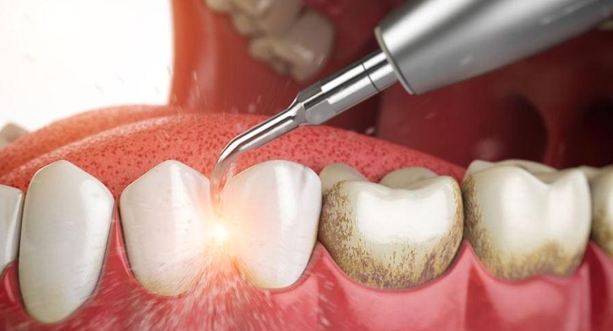 Cạo vôi răng bằng sóng siêu âm có tốt không?