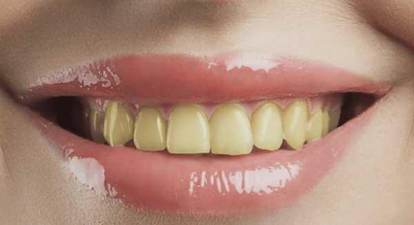 chữa đau răng bằng lá lốt, lá lốt chữa đau răng, cách trị đau răng bằng lá lốt, cách chữa đau răng bằng lá lốt, trị đau răng bằng lá lốt, lá lốt trị đau răng, tác dụng của lá lốt chữa đau răng, cách chữa sâu răng bằng lá lốt, cách sắc lá lốt chữa đau răng, ngậm lá lốt chữa đau răng, lá lốt trị sâu răng, trị sâu răng bằng lá lốt, bài thuốc chữa đau răng bằng lá lốt, nước lá lốt chữa đau răng, la lot chua dau rang, chua dau rang bang la lot, lá lốt chữa sâu răng, lá lốt chữa đau răng như thế nào, cách chữa nhức răng bằng lá lốt, cách chữa sâu răng dân gian, chữa sâu răng bằng lá lốt, cách trị sâu răng bằng lá lốt, trị nhức răng bằng lá lốt, lá lốt trị nhức răng, chữa đau răng bằng cây lá lốt, cách dùng lá lốt chữa đau răng, chữa nhức răng bằng lá lốt, cách trị nhức răng bằng lá lốt, rễ lá lốt chữa đau răng, chữa đau răng bằng rễ lá lốt, chữa bệnh đau răng bằng lá lốt, chữa đau răng sâu bằng lá lốt, chữa đau nhức răng bằng lá lốt, chữa đau răng tại nhà bằng lá lốt