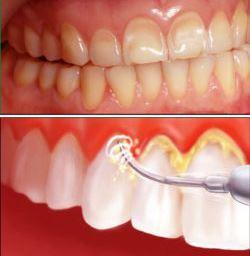 kiêng gì sau khi cạo vôi răng, sau khi cạo vôi răng cần kiêng gì