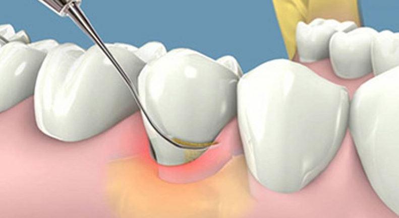 Cạo vôi răng có ảnh hưởng gì không? Cách phòng ngừa cao răng hiệu quả