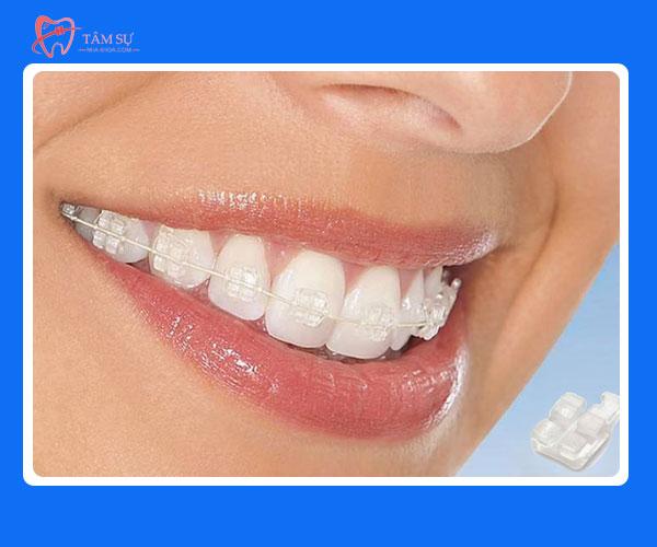 chi phí niềng răng giá bao nhiêu tiền, bảng giá chi phí niềng răng, niềng răng giá bao nhiêu tiền, chi phí niềng răng hết bao nhiêu tiền, chi phí niềng răng, chi phí niềng răng 1 hàm, chi phí niềng răng khấp khểnh, khuyến mãi niềng răng, bảng giá niềng răng, giá niềng răng, bang gia nieng rang, nẹp răng mất bao nhiêu tiền, niềng răng hết bao nhiêu tiền, niềng răng giảm giá, báo giá niềng răng, giá các loại niềng răng, giảm giá niềng răng, gia nieng rang, niềng răng bảng giá, niềng răng khuyến mãi, niềng răng giá, bảng giá niềng răng hô, niềng răng cần bao nhiêu tiền, niềng răng bao nhiêu tiền, niềng răng mất bao tiền