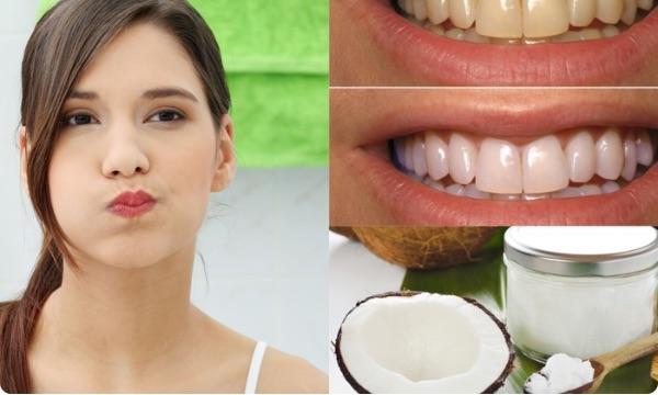 Cách súc miệng bằng dầu dừa đơn giản áp dụng ngay